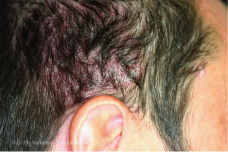scalp psoriasis on man's head