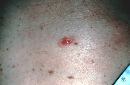Close-up of a melanoma that looks like a sore