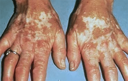 Vitiligo Signs And Symptoms