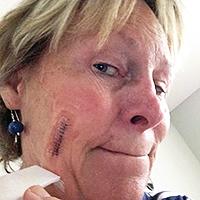 Public>Public-health>Skin-cancer-awareness>Story>Kristin-Brett