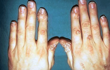Warts on the hands of a woman