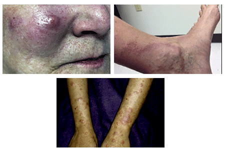 Early signs of leprosy