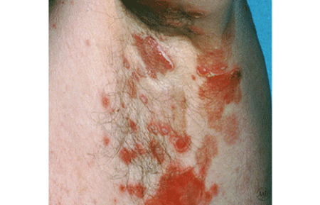 Pemphigus vulgaris blisters and sores