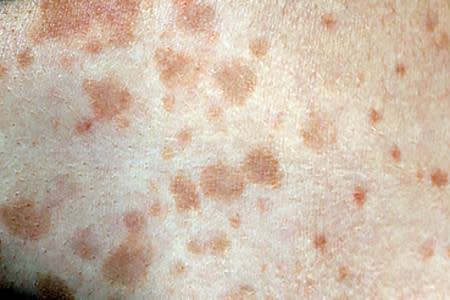 Tinea versicolor spots on the skin