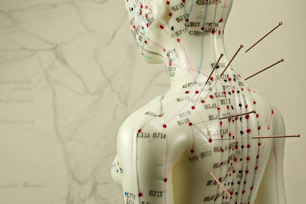 how does acupuncture work