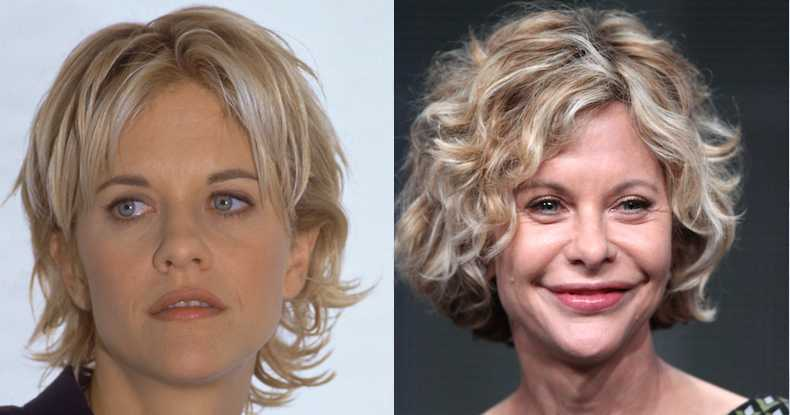 Image result for Bad surgery meg Ryan