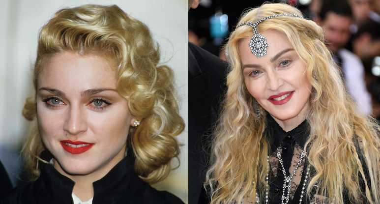 Madonna Plastic Surgery Disasters Purple Clover