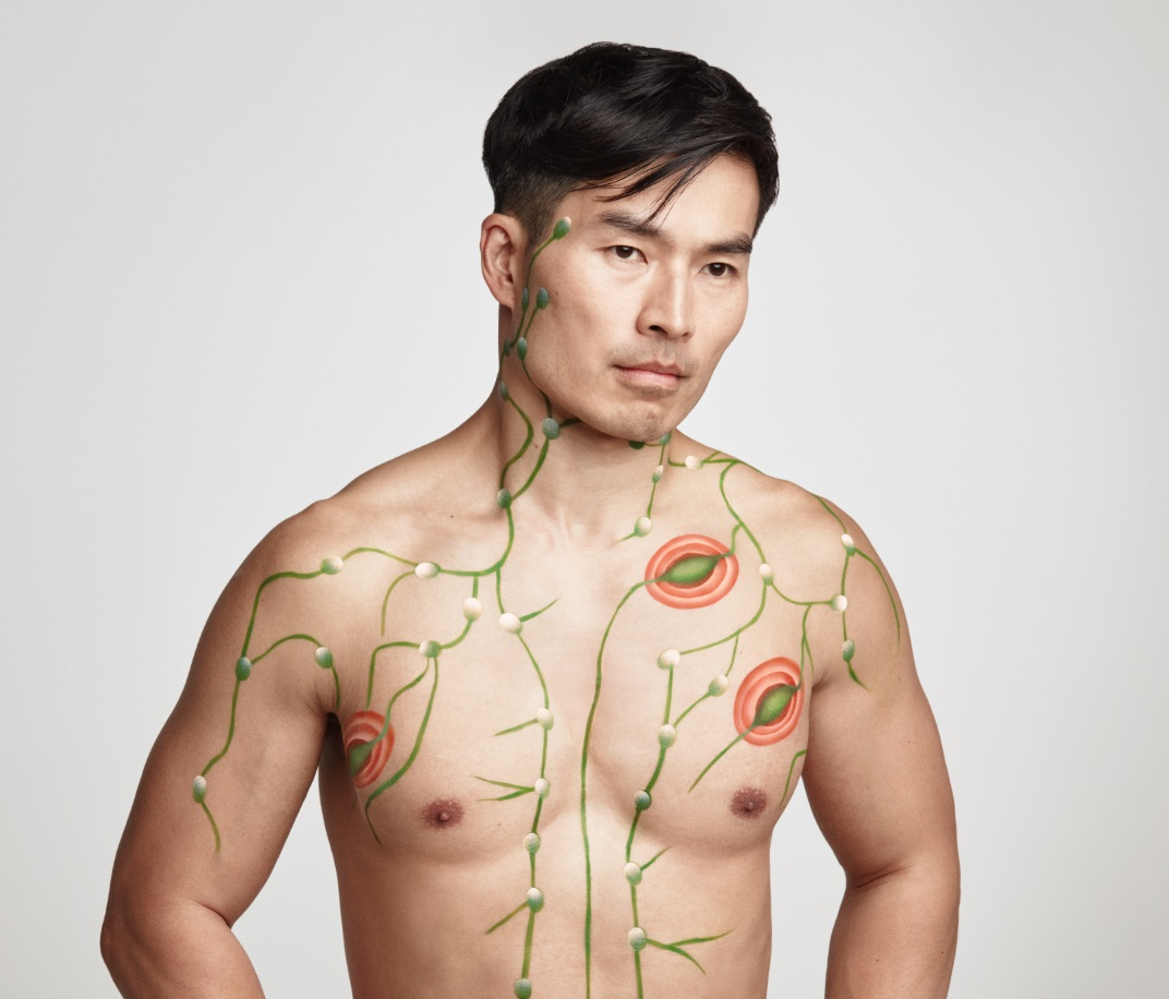 Body painting that shows how idiopathic multicentric Castleman disease can attack the lymph system.