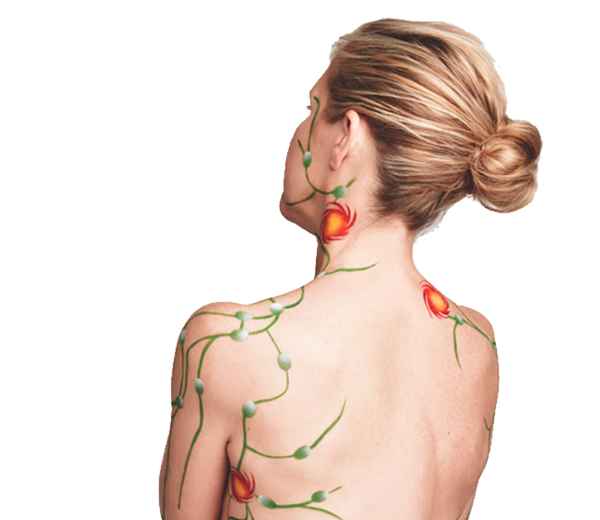 campaign-woman-lymph-wall-2