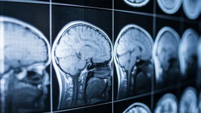 brainstem-anatomy-and-functions