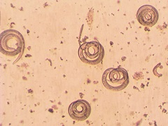Parasites roundworms