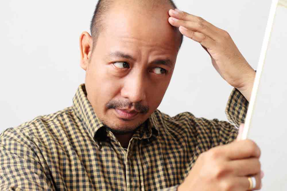 How to stop hair fall for men Image title: Hair loss in Men