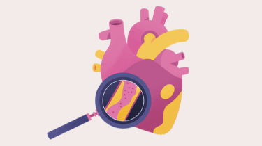 Heart health: Guide: Cardiologist