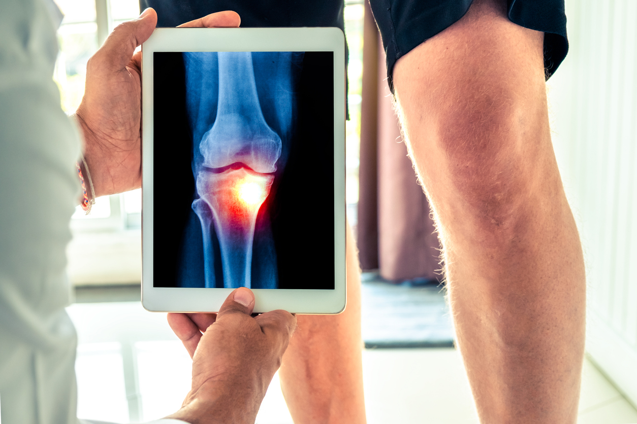 Osteoarthritis: Ageing and your body