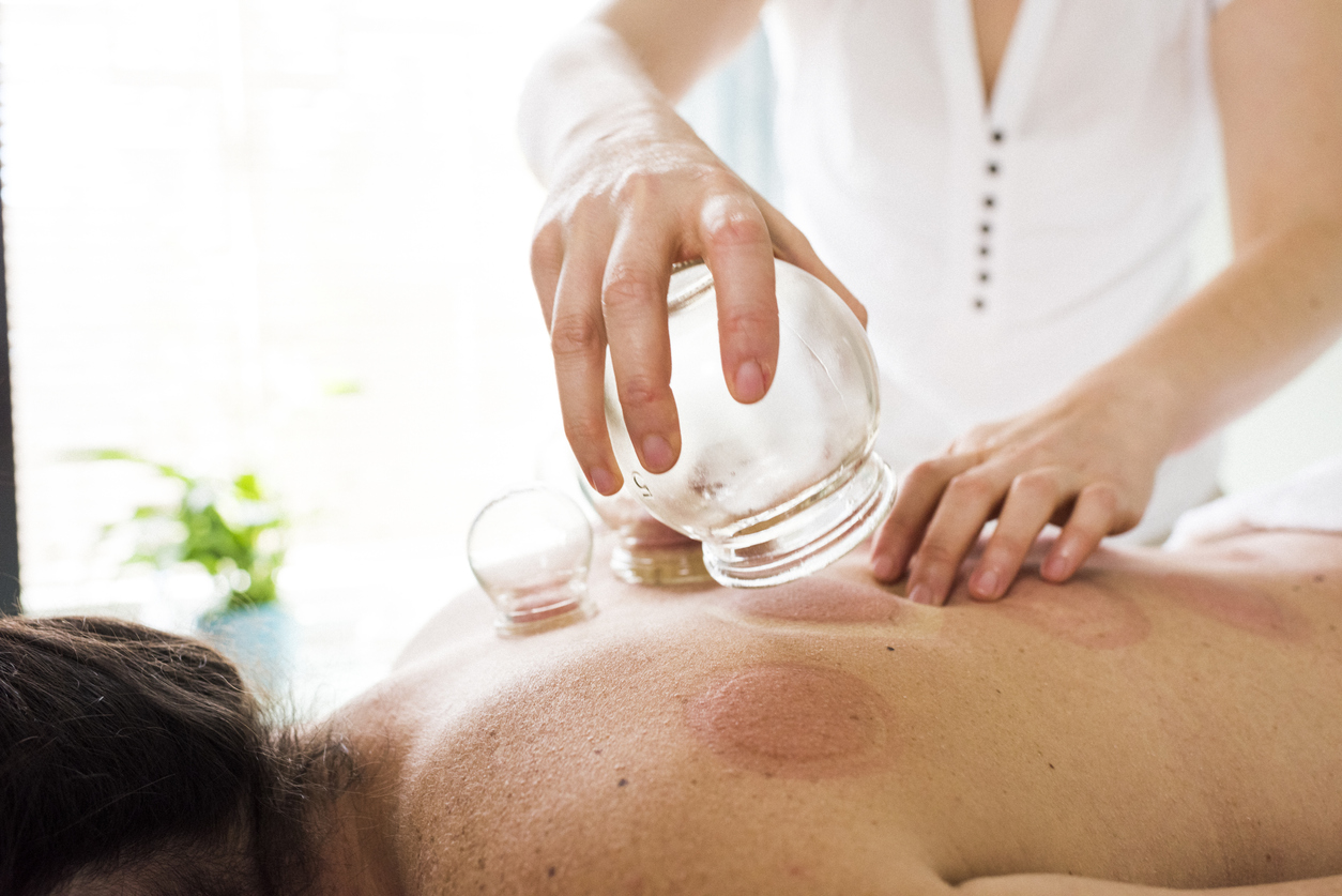 What is Functional Cupping?