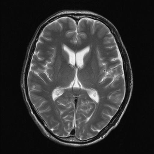 60代の脳のMRI画像
