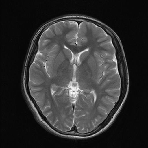 10代の脳のMRI画像