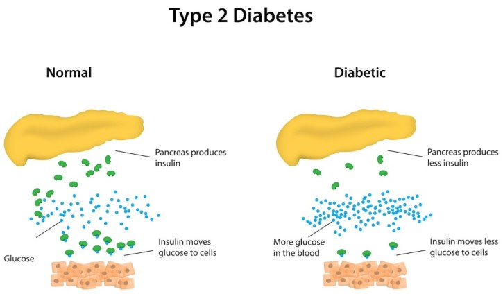 in type 2 diabetes, the pancreas produces less insulin which results in less glucose moving from the blood stream into the cells
