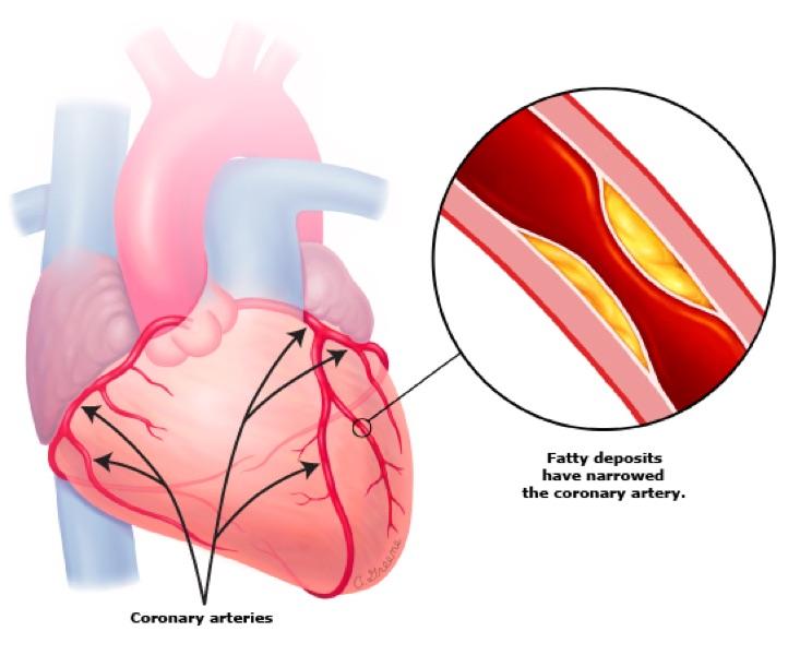 Coronary artery disease a macrovascular complication of type 2 diabetes