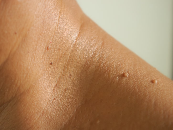 Example 2 - Skin tags
