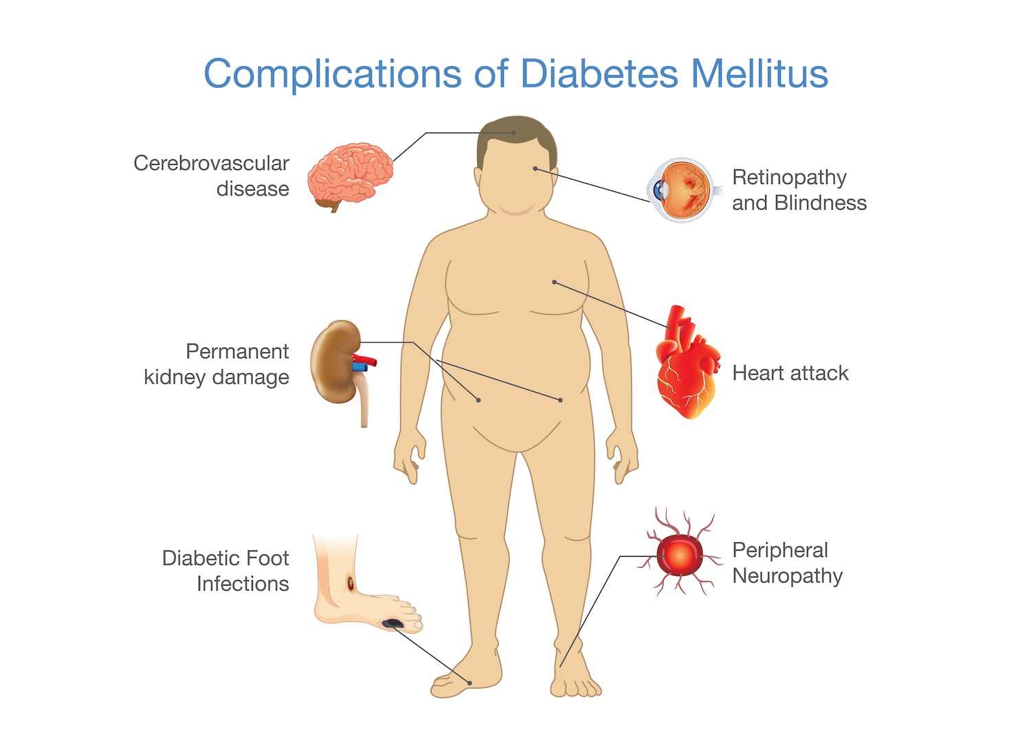 Complications of type 2 diabetes includes problems with the small and large blood vessels