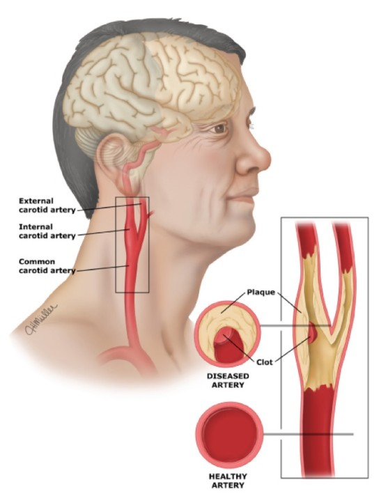 Cerebrovascular disease is a macrovascular complication in type 2 diabetes