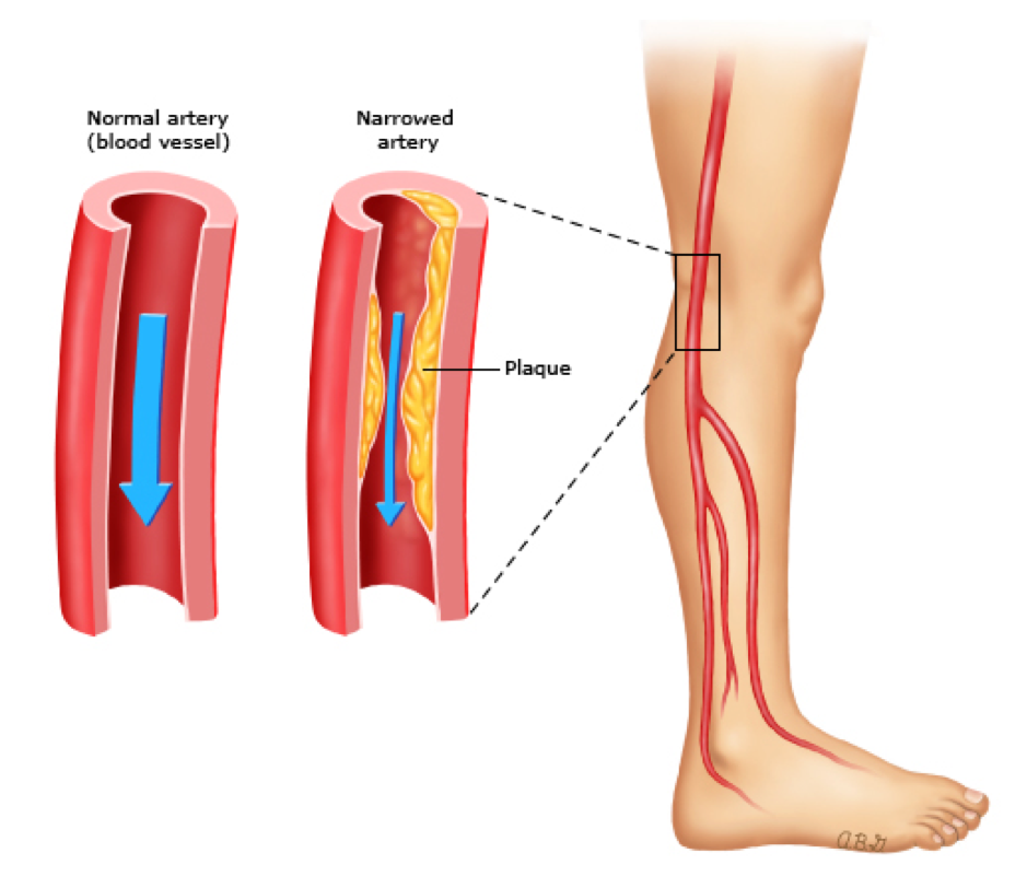 Peripheral artery disease is a macrovascular complication of type 2 diabetes