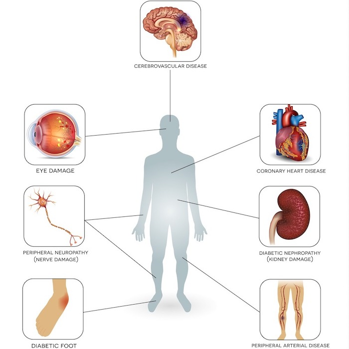 complications of diabetes infographic