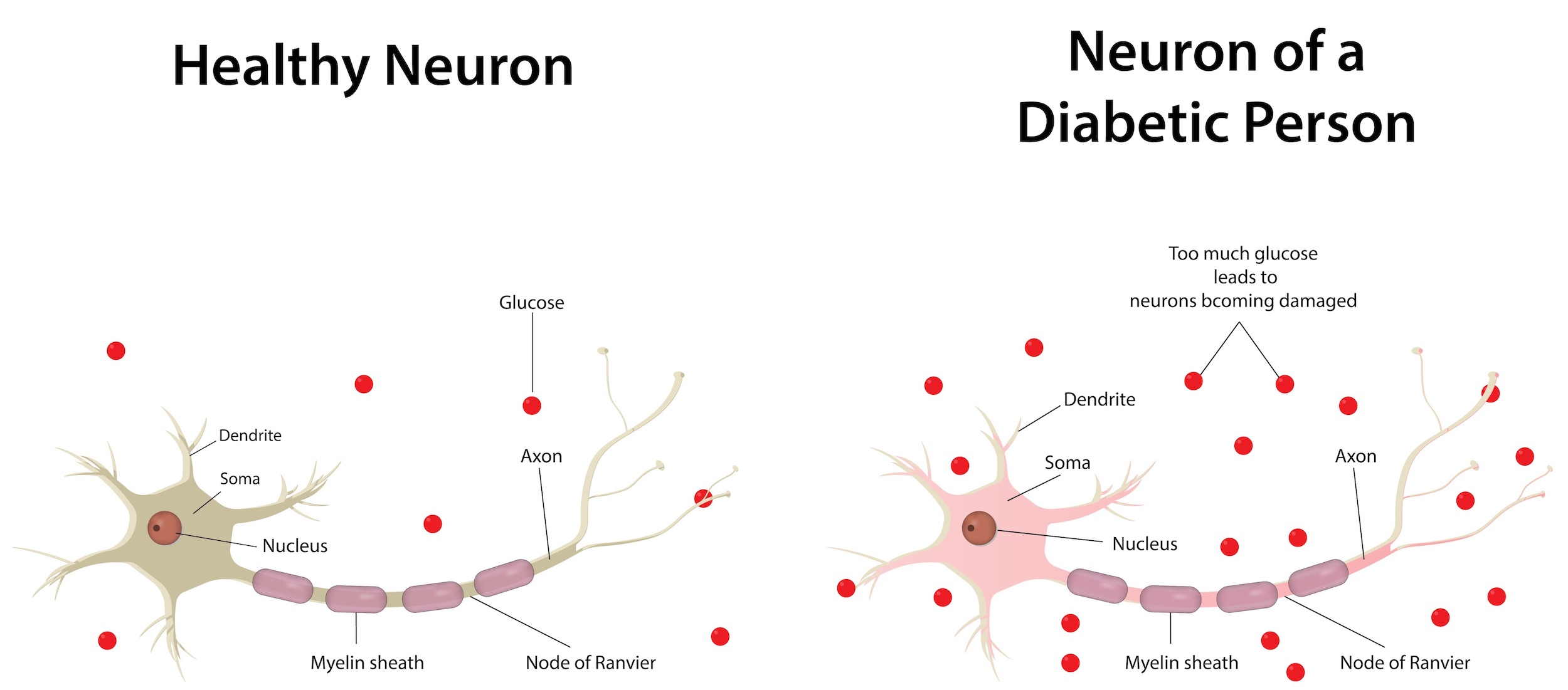 Diabetic neuropathy is a microvascular complication of type 1 diabetes