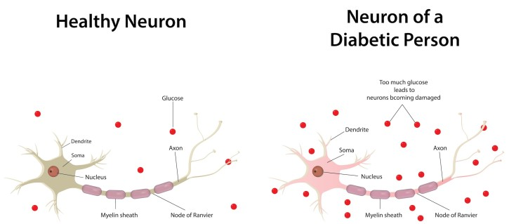 Diabetic neuropathy is a microvascular complication of type 2 diabetes