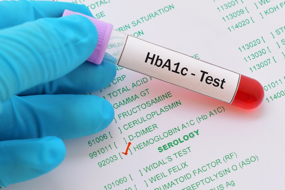 Hb A1c test shows the average amount of glucose bound to red blood cells in people with diabetes