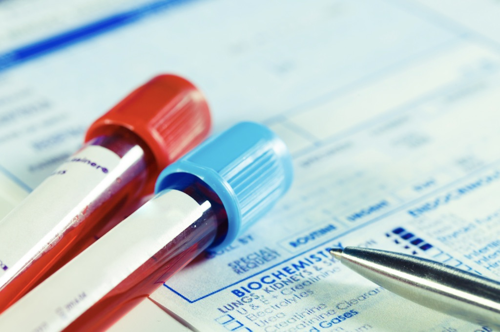 diagnosing prediabetes requires blood tests