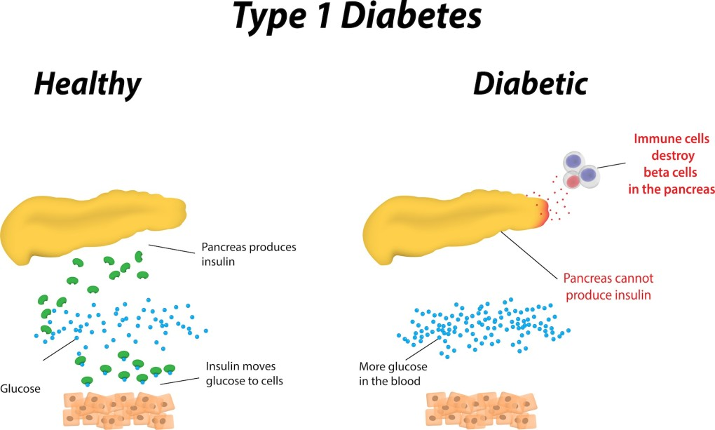 People who have type 1 diabetes mellitus do not produce insulin