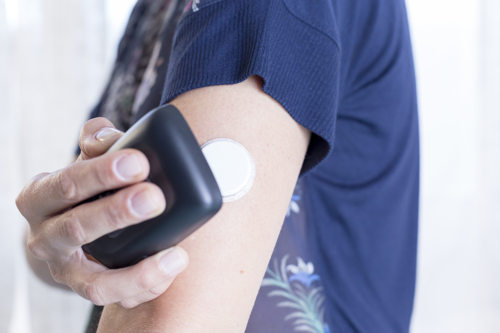 continous glucose monitoring(CGMS) in a man with type 1 diabetes
