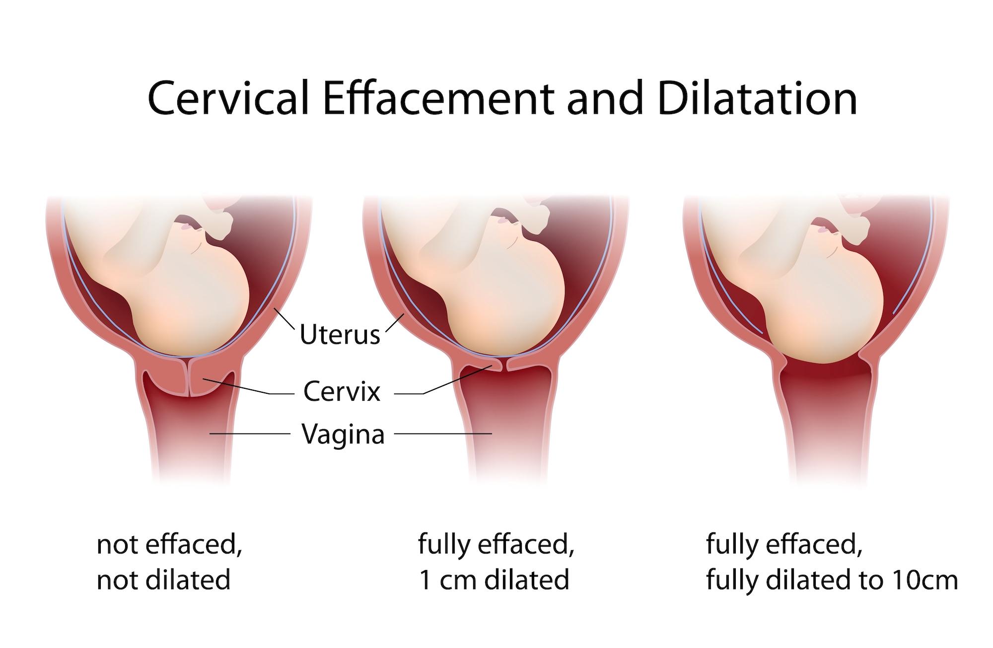 Cervical-Effacement-Dilation-Pregnancy-Chart-jpg