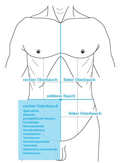 Schmerzen im unterbauch und rücken | Unterbauchschmerzen