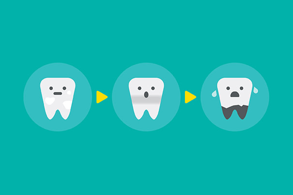 Tips de higiene bucal para prevenir la carie del bebé