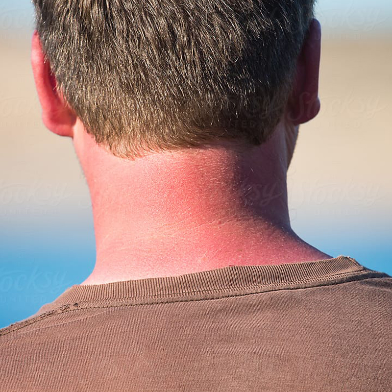 Image of a sunburn on a person's neck