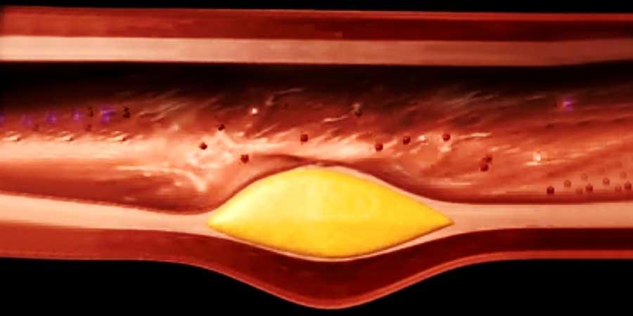 İlaçsız Kolesterol Düşürmenin 6 Yolu