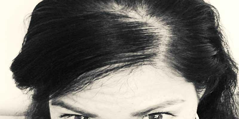 Kadınlarda saç dökülmesinin nedenleri ve çözümü