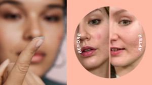 tiny patches to cover breakouts to help them heal faster