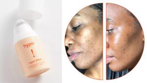 brightening vitamin c serum for dark spots, acne scars, and sun spots