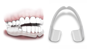 mouth guard to help with teeth grinding