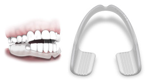 mouth guard for jaw grinding
