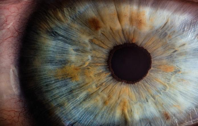 Common Health Care Expenses: The Cost of Pink Eyeimage