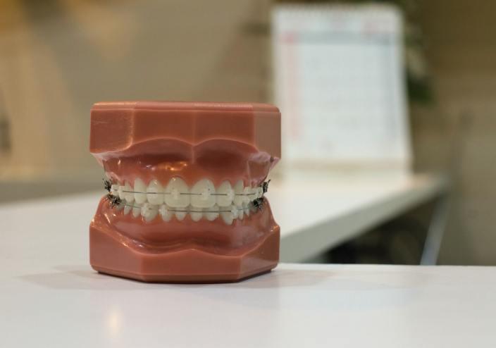 common-health-expenses-braces