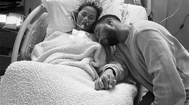 chrissy teigen in the hospital, suffering a miscarriage