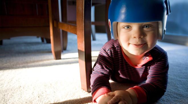 happy baby wearing corrective helmet