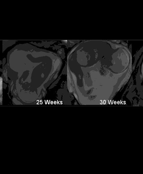 Week pregnancy trimester breakdown Pregnancy Calendar: