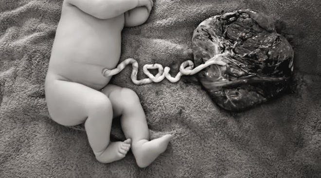 Newborn next to placenta with umbilical cord attached
